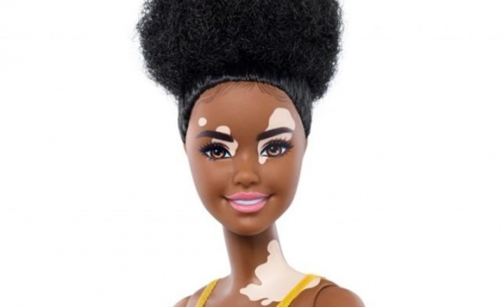 Mattel выпустила кукол Барби с витилиго и алопецией